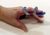 Toad Finger Splint Large Bulk  PK/6 Non-Retail