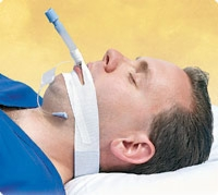 Trachtape, Endotracheal Tube Securing Device