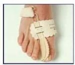 Toe Immobilizer